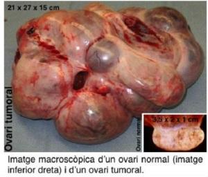 Tumor_de_ovario._Imagen_VHIR_Jano.es