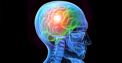 lesión-cerebral-traumática
